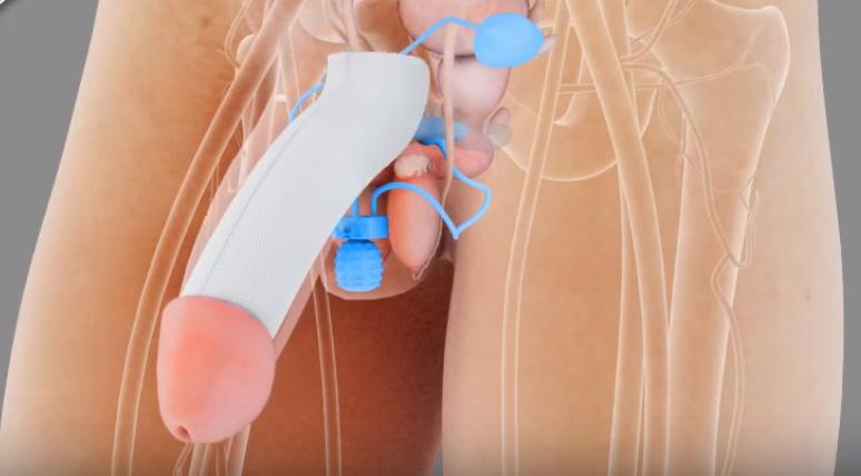 Cirurgia Para Aumentar o Tamanho do Pênis