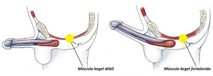 Exercício para controlar a ejaculação precoce