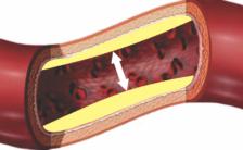 Vasodilatador Para Impotência Sexual Masculina