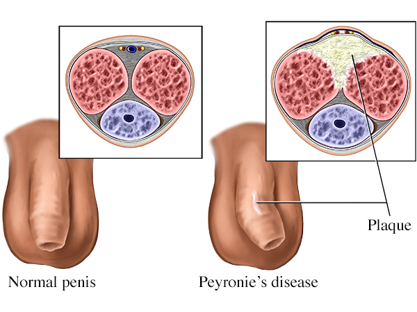 todos os tipos de pênis
